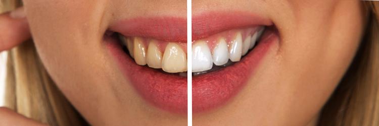 Tanden bleken na beugel